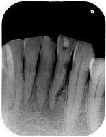 歯間のむし歯