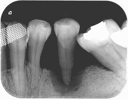 歯槽骨吸収