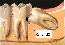 第二大臼歯のむし歯