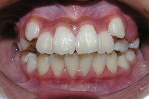 永久歯の叢生