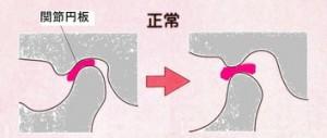 顎関節症 正常