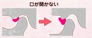 顎関節症 開口障害