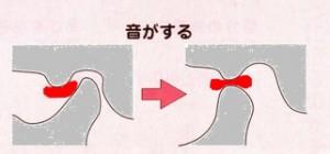 顎関節症 音