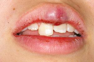 歯牙不完全脱臼