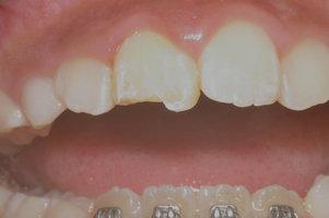 歯牙破折(修復前)